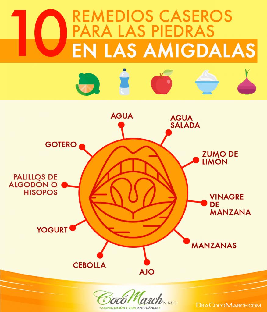 remedios-caseros-para-las-piedras-de-las-amigdalas