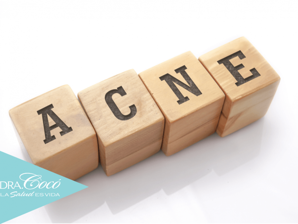 consejos-para-prevenir-el-acné