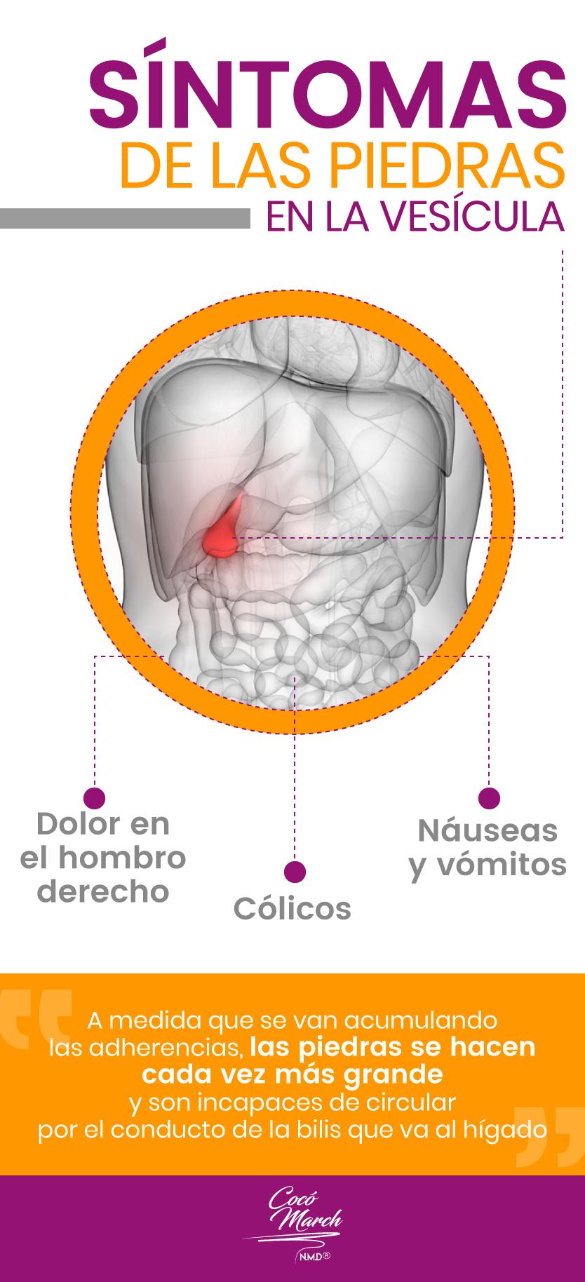 sintomas-de-piedras-en-la-vesicula