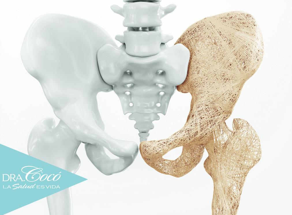 la-vitamina-k-2-previene-la-osteoporosis