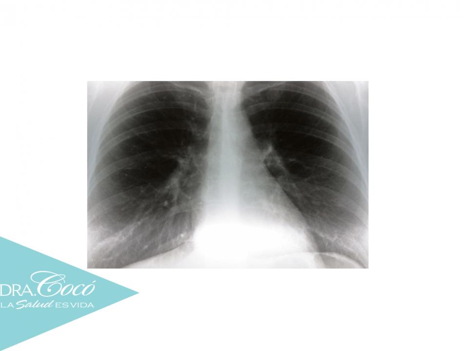 cómo-combatir-el-enfisema-pulmonar