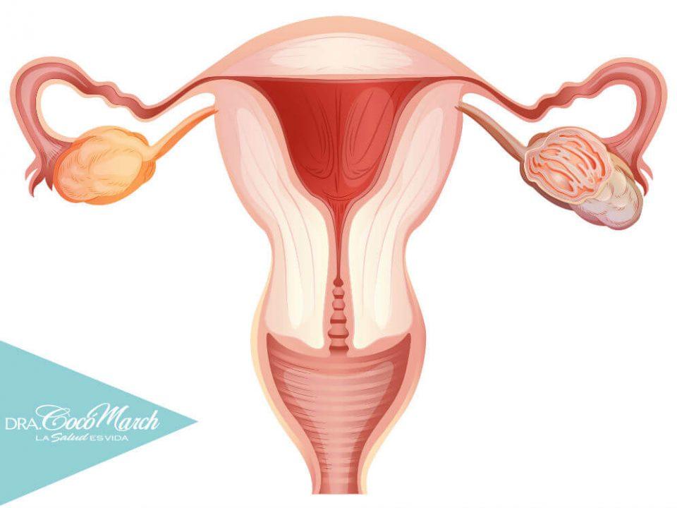 cáncer.de.ovario-trompas-de-falopio