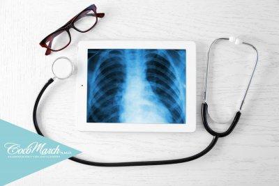 síndrome-costillas-deslizantes
