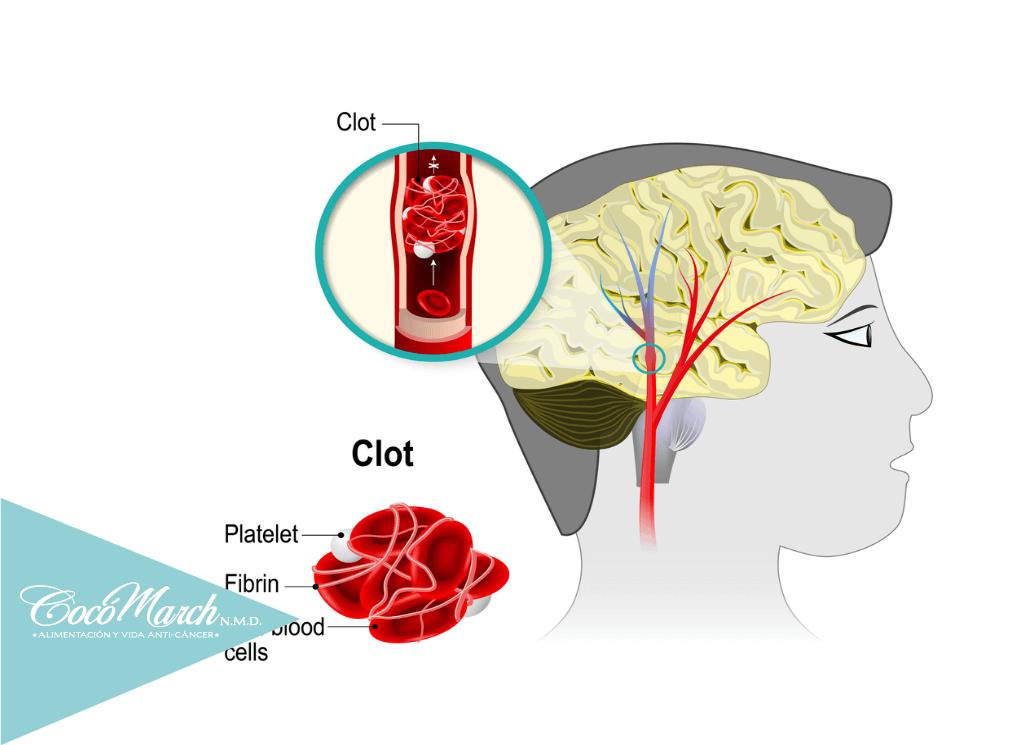enfermedades-por-arterias-obstruídas