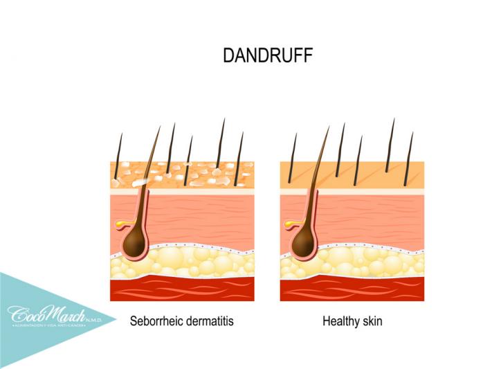 síntomas-de-la-dermatitis-seborreica