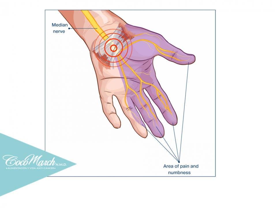 cómo-curar-el-síndrome-del-túnel-carpiano-naturalmente