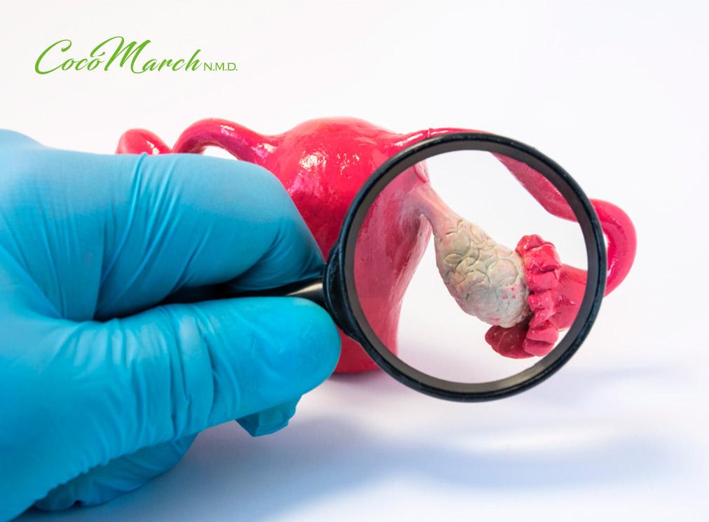 sindrome-de-ovario-poliquistico