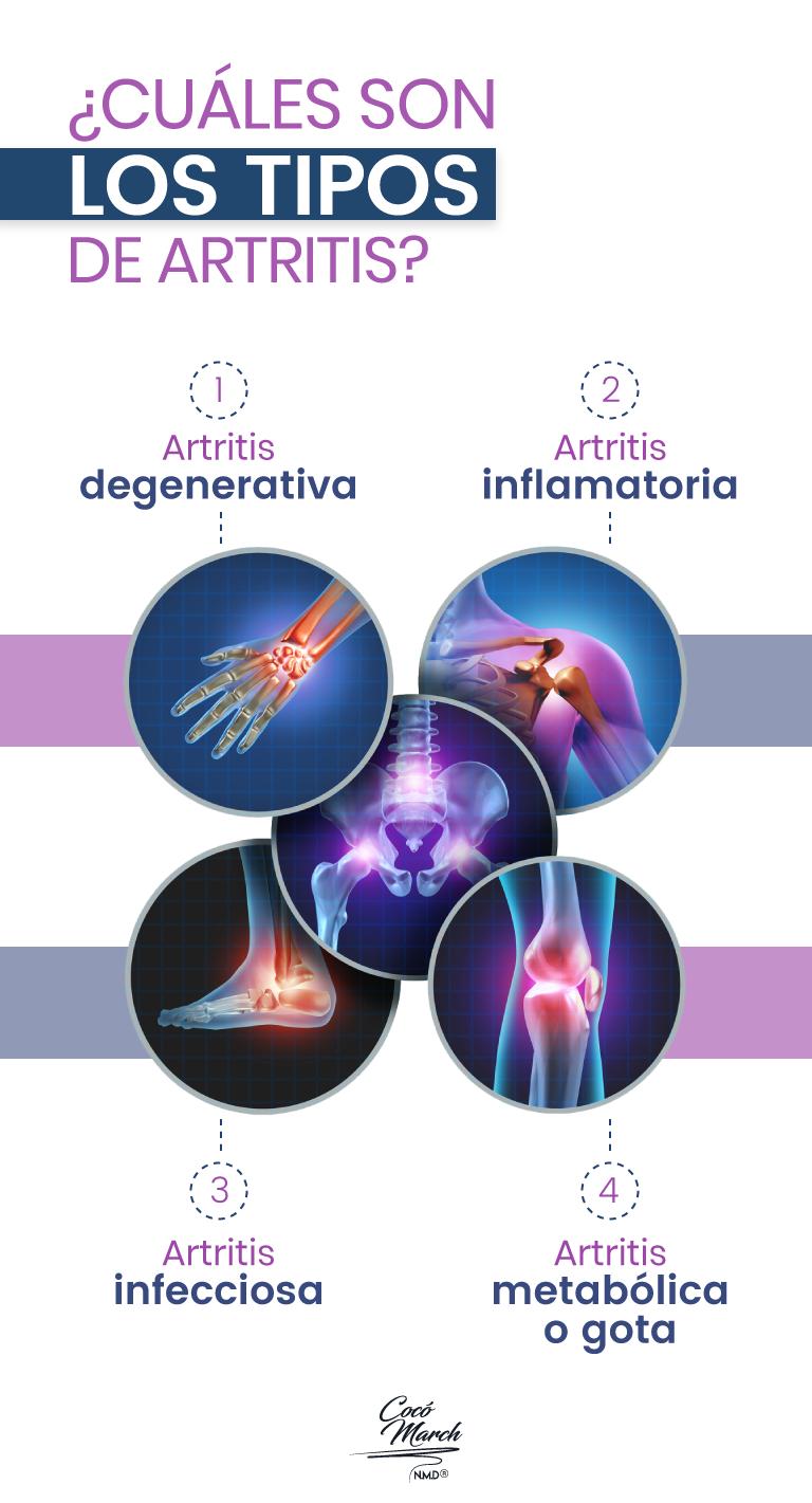 tipos-de-artritis