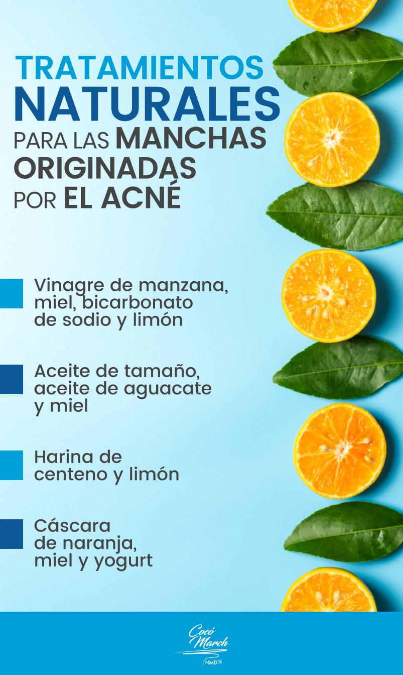 tratamientos-naturales-para-las-manchas-por-acné