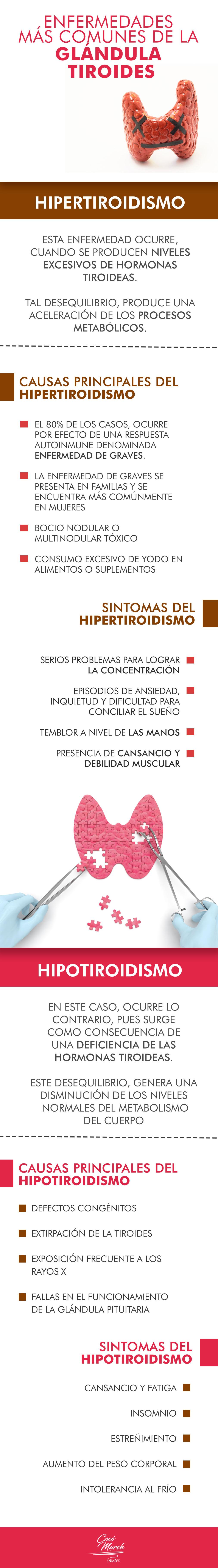 glandula-tiroides
