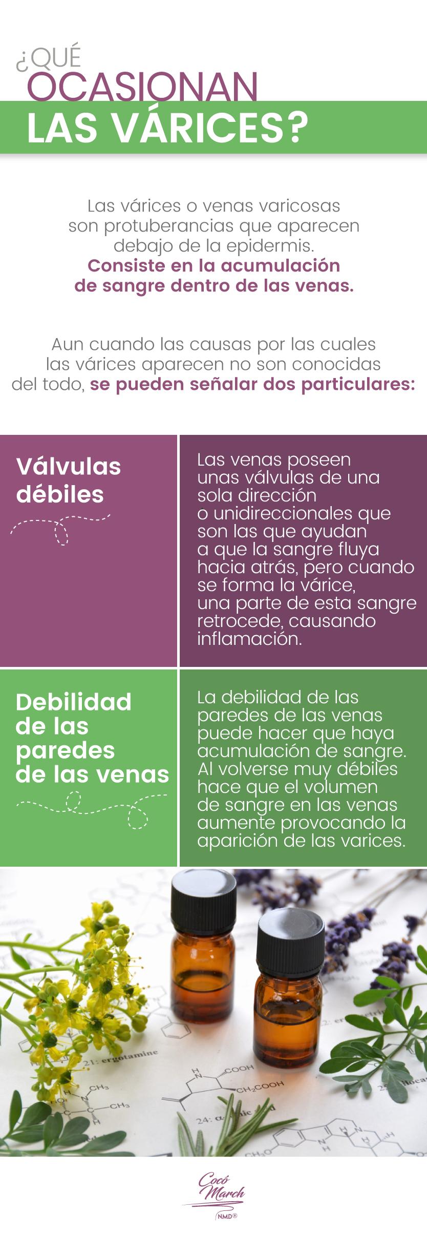 causas-de-las-varices