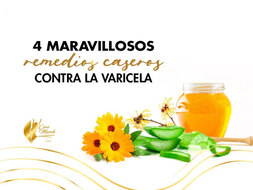 remedios-caseros-para-la-varicela