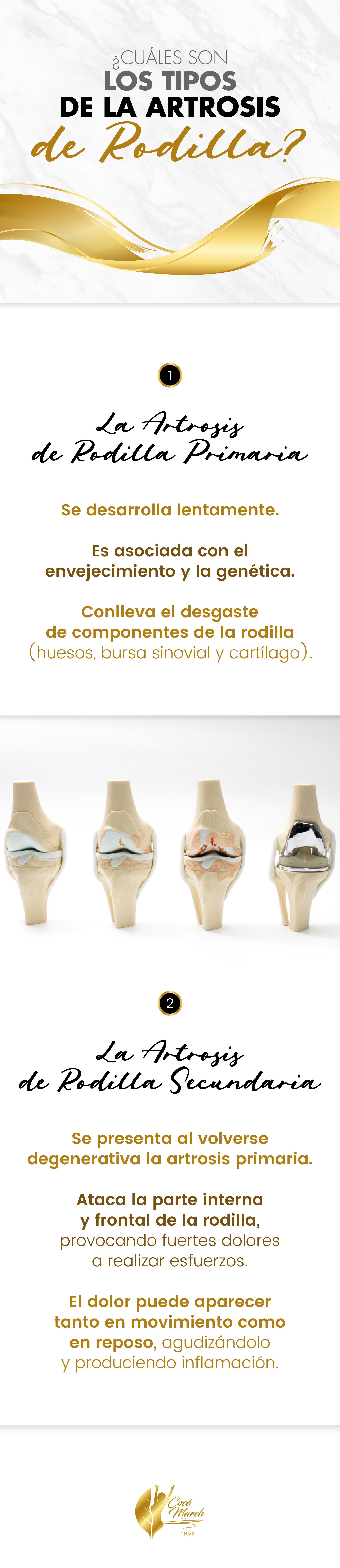 tipos-de-artrosis-de-rodilla