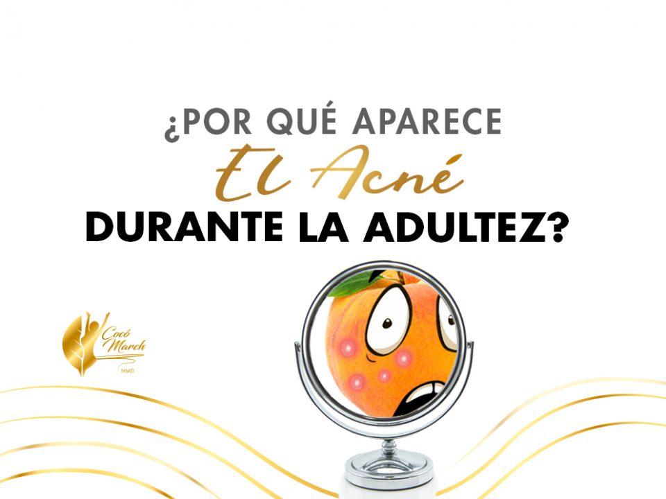 por-que-aparece-acne-durante-adultez