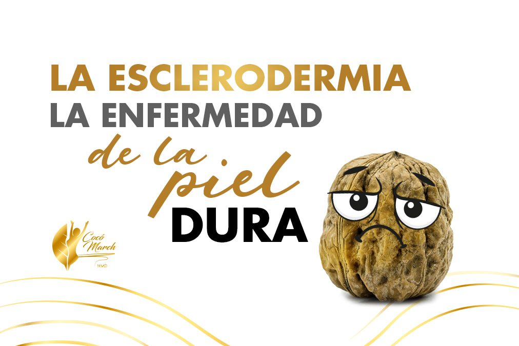 esclerodermia-localizada